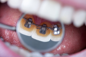 Dental mirror showing braces